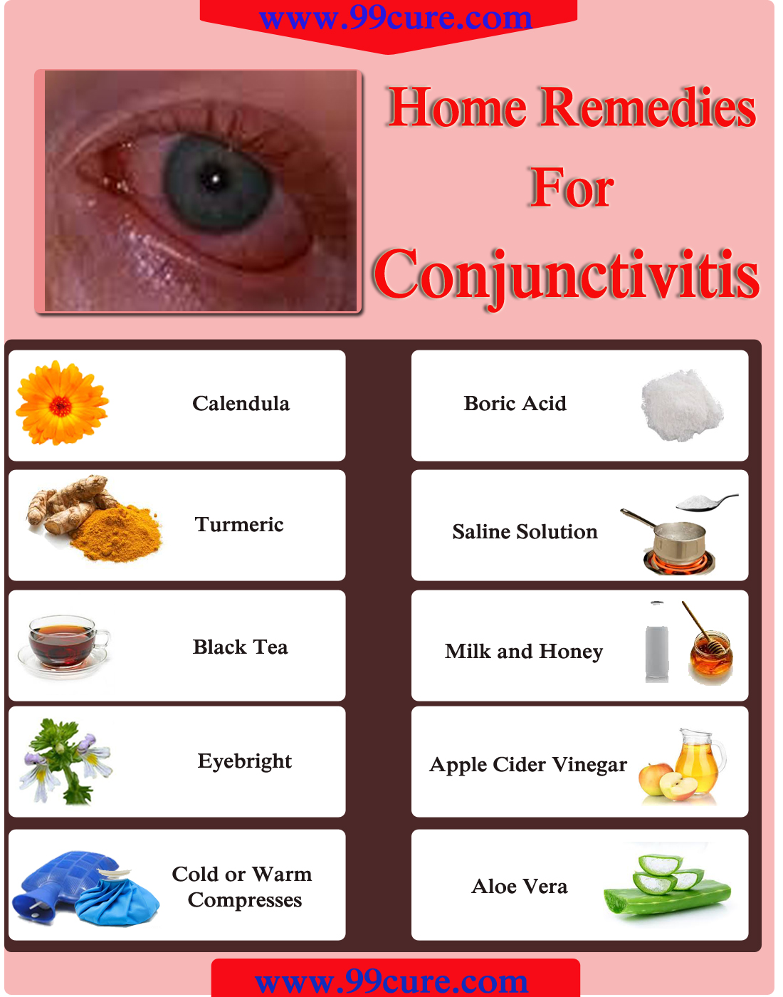 Home Remedies for Conjunctivitis