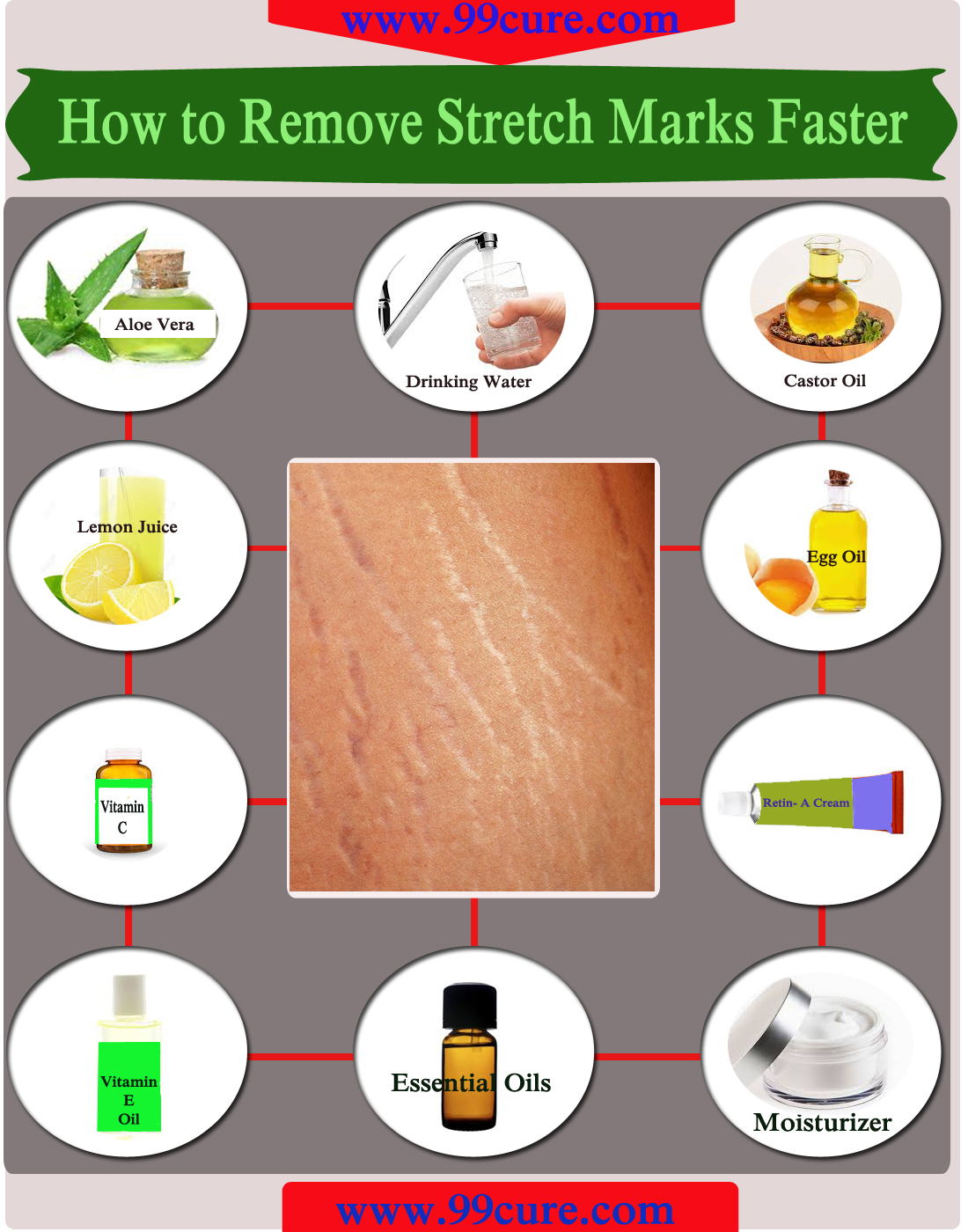 How to Remove Stretch Marks Faster