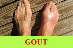 Gout: Types, Symptoms, Causes,Risk factors, Complications, Tests and diagnosis,Treatment and Prevention