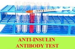 Anti-insulin antibody test:Purpose, Procedure, Results, Reference values and Limitations