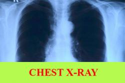Chest x-ray: Preparation, Procedure, Purpose, Normal Result, Meaning of Abnormal Results and Risks