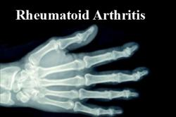 Self management of Rheumatoid Arthritis