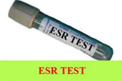 ESR Test: Preparation, Procedure, Purpose, Normal Result and Understanding Abnormal Values