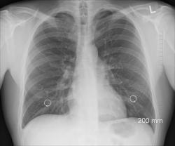 Lung cancer and Its Types