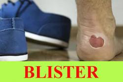 Blister: Causes, Conditions that cause blisters with symptoms, Treatment, Prevention and Prognosis