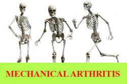 Degenerative or mechanical arthritis, Soft tissue musculoskeletal pain, Connective tissue disease and Back pain