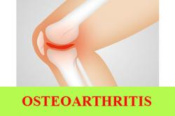 Types of Osteoarthritis, Symptoms and Prevention
