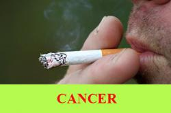 Cancer: Causes, Risk factor, Symptoms, Types and Staging