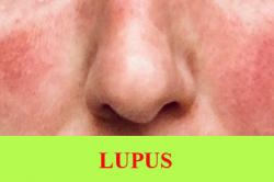 Treatment for Systemic Lupus